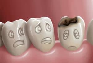стоматология лечение кариеса